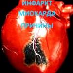 четыре причины инфаркта