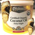 Кариес зубов может предотвратить кокосовое масло