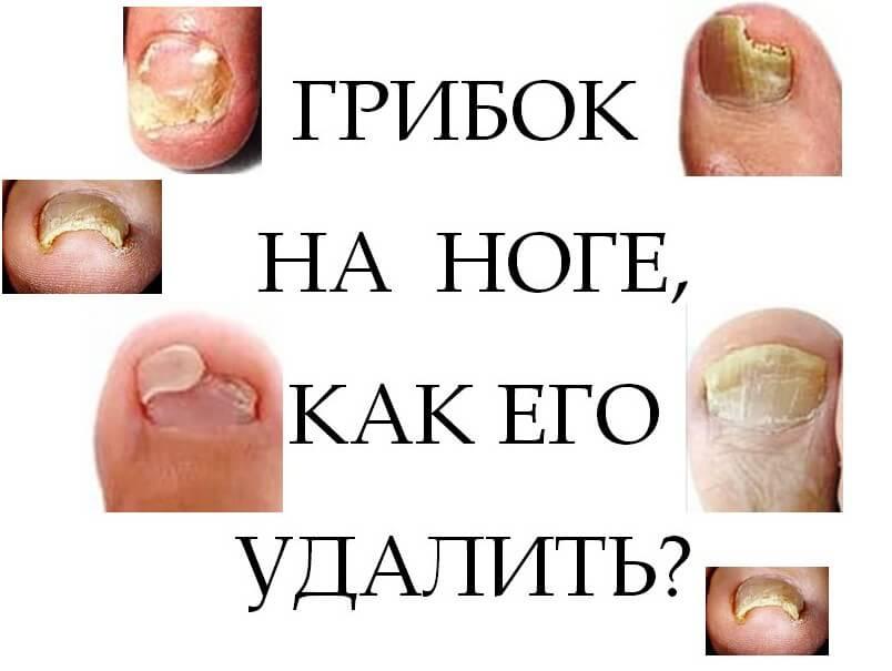 Избавиться от грибка ногтя в домашних условиях