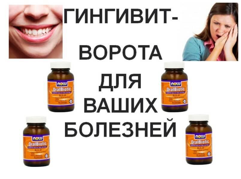 Гингивит-ворота-для-болезней