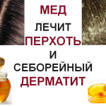 Honey treats dandruff and seborrheic dermatitis