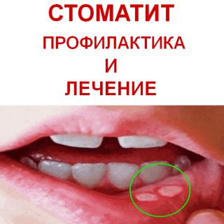 Как лечить болячки на языке в домашних условиях