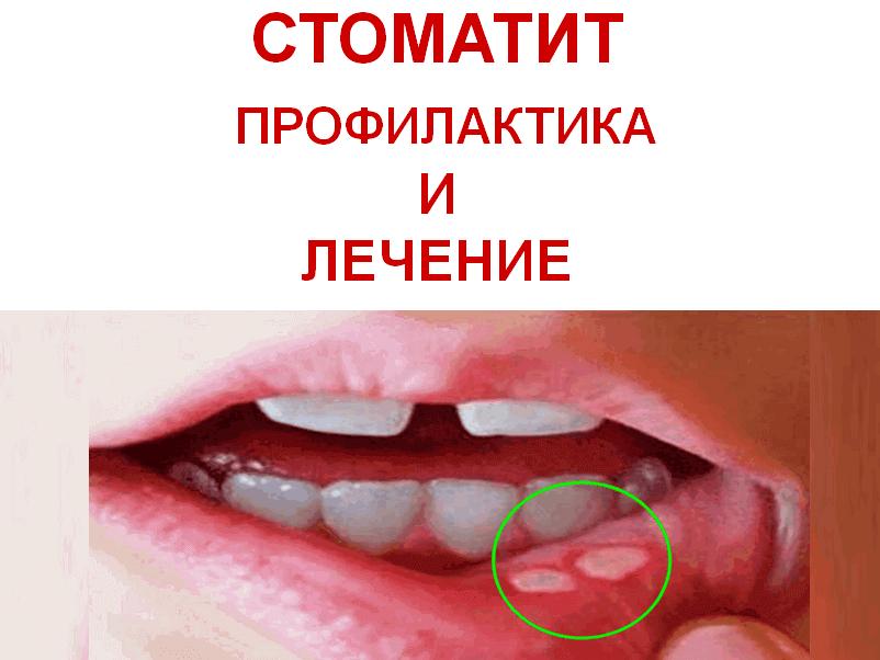 Стоматит у ребенка в домашних условиях 572
