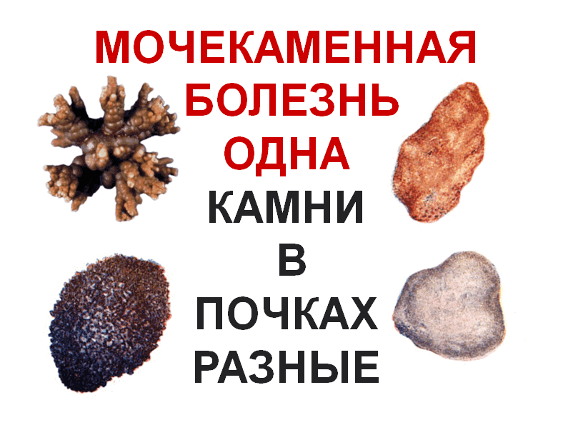 urolithiasis-one-kidney-stones-are-different