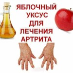 Apple-cider-vinegar-treatment-for-arthritis