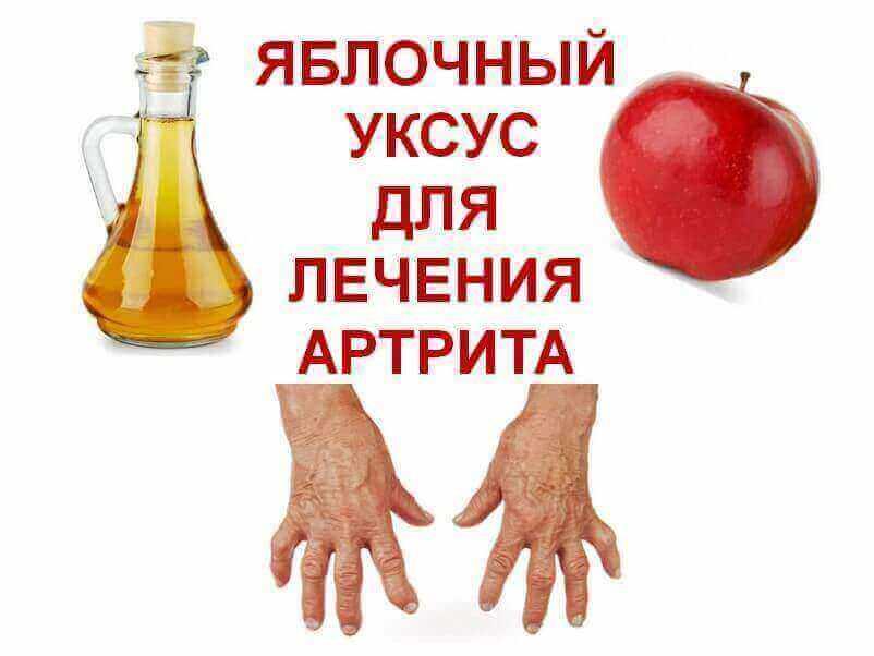 Apple-cider-vinegar-treatment-for-arthritis