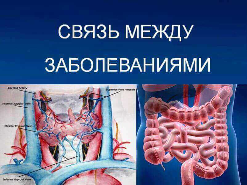 The-link-between-thyroid-disease-and-bowel