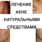 Treatment-of-acne-natural-remedies