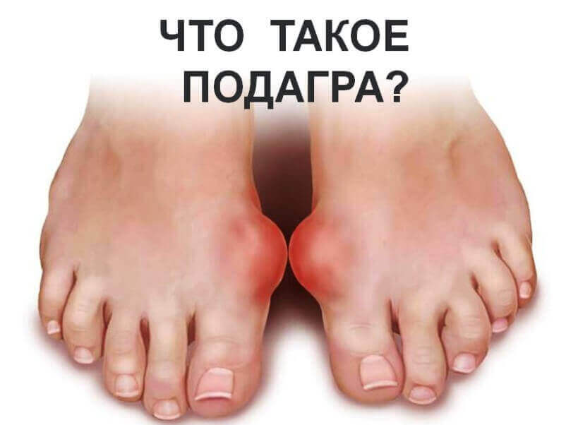 What-is-gout