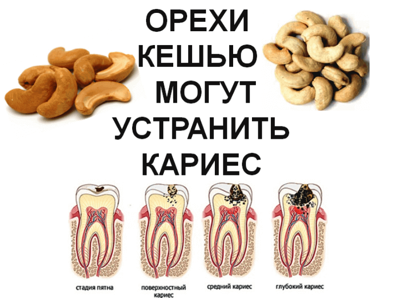 Cashews-can-eliminate-tooth-decay