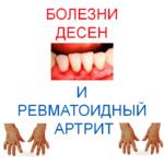Gum-disease-and-rheumatoid-arthritis