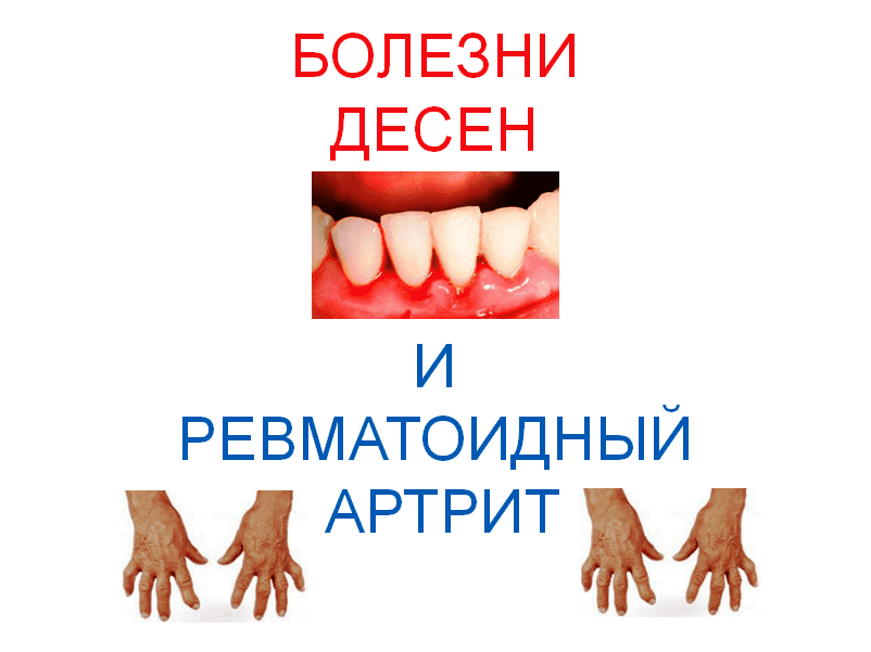 Gum-disease-and-rheumatoid-arthritis